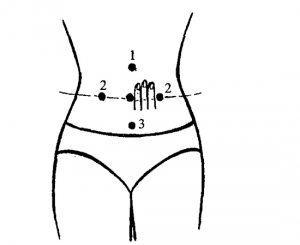 Расстройство желудка (желудочно-кишечные боли)