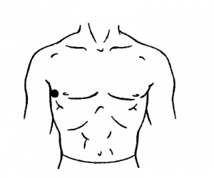 Гипертония (повышенное кровяное давление)